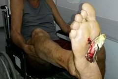 Bagres - Saiba como lidar com acidentes causados por seus ferroes 2