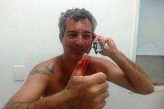 Joe mostra o dedo mordido pelo tubarão (Foto Divulgação Folha de Búzios)