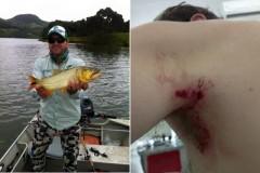 Pescador esportivo e recebido por tiros em Salto Bonito em Bituruna-PR