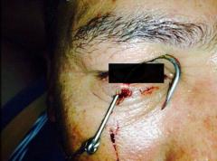 Homem perde a córnea em pescaria, anzol atravessou o olho